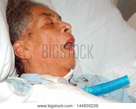African american female senior with a breathing tube.