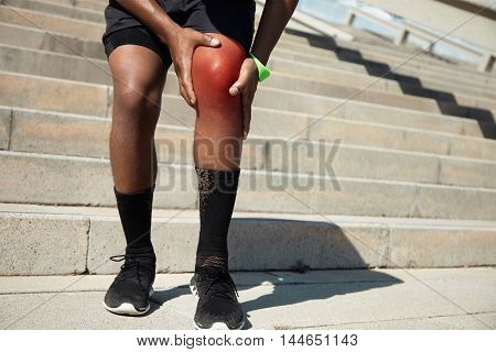 Physical Injury Concept. African Jogger Wearing Black Shorts And Athletic Shoes, Standing On Steps O