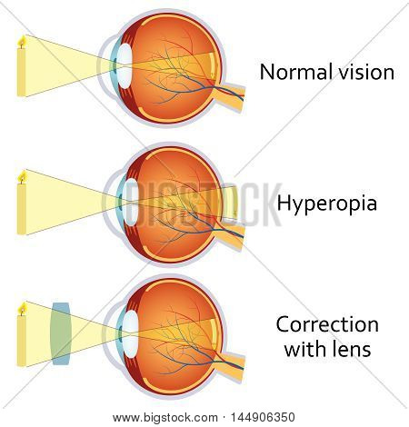 Hyperopia and Hyperopia corrected by a plus lens. Eye vision disorder.