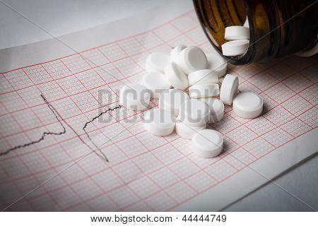 Electrocardiograma e nitroglicerina