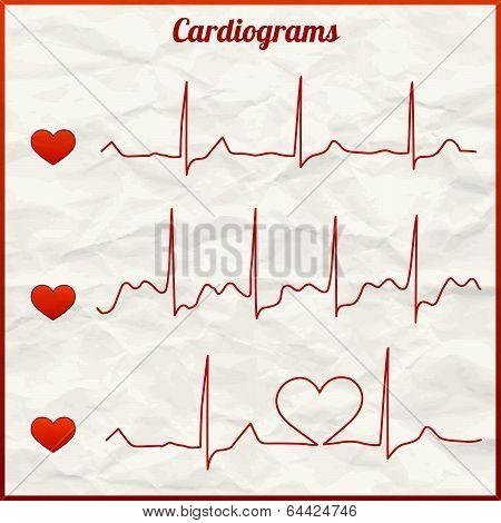 Set of cardiograms