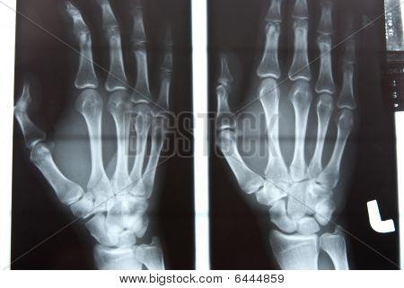 Imagem de raio x de mão humana