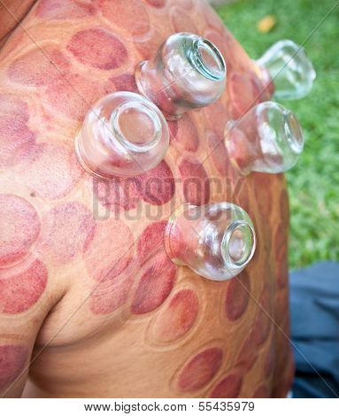 Cupping therapy is an ancient form of Chinese alternative medicine in Ho Chi Minh, Vietnam.