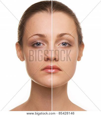 Woman's Face Correction