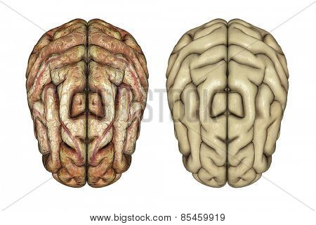 3D render of two brains, one healthy and one diseased