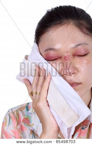 Woman Holds An Ice Pack After Nose Job