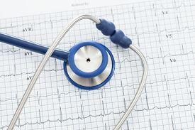 foto of ekg  - Stethoscope with ekg cardiograms chart  - JPG