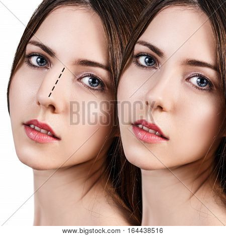 Female face before and after cosmetic nose surgery over white background.