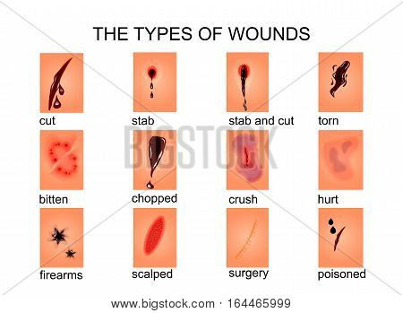 illustration of types of wounds.for medical textbooks publications