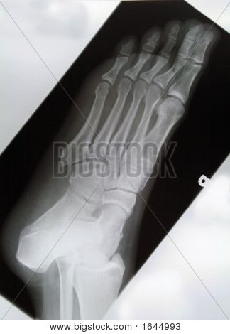 Obl Rt Foot