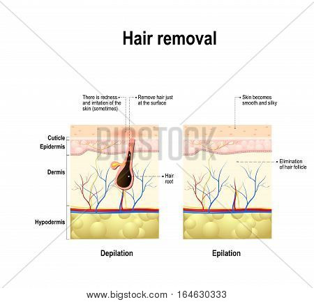 epilation and depilation difference. human skin. Hair removal