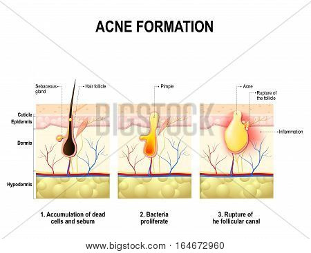 Three stages of the acne formation in the human skin. The sebum in the clogged pore promotes the growth of a bacteria Propionibacterium Acnes. This leads to the redness and inflammation that associated with pimples. For clinics and Schools