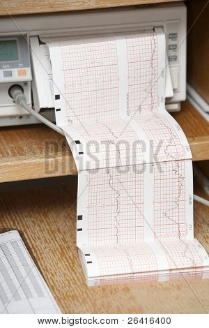An ekg print out at a hostital