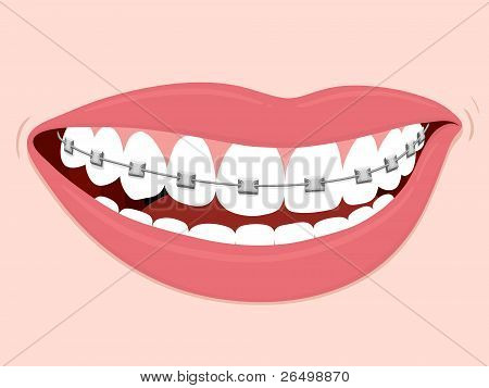 Braces Corrective Orthodontics