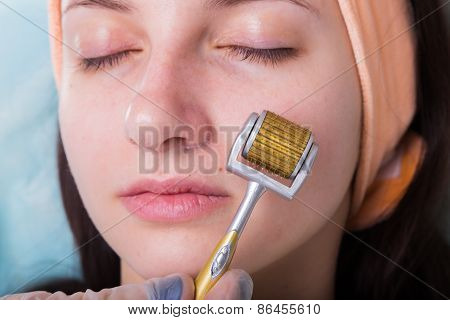 Beautician performs Dermaroller procedure