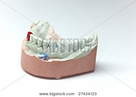 COLOGNE - MARCH 22: Isolated working model of lower jaw teeth at the IDS Dental Industry trade show in Cologne, Germany on March 22, 2011.