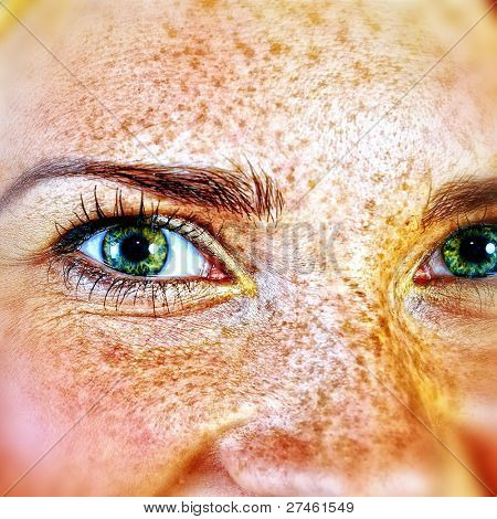 Woman with many freckles