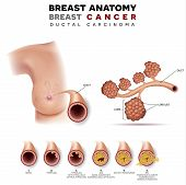 Breast Cancer Anatomy Illustration, Ductal Carcinoma Of The Breast, Detailed Medical Illustration. N poster