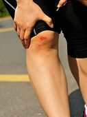 stock photo of scabs  - woman hands hold her sports injured knee - JPG