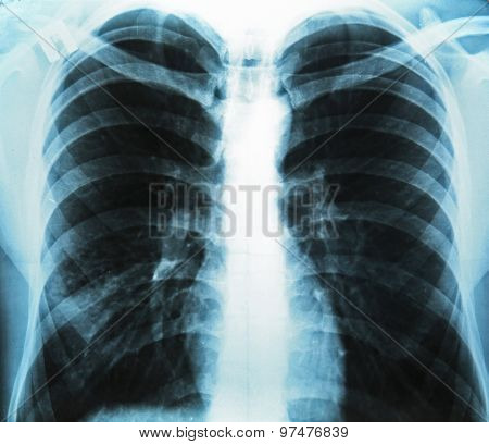 X-ray of human chest, closeup