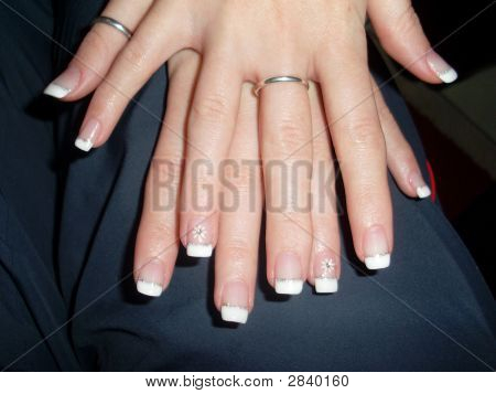 Fingernails Of The 19 - Year - Old Girl Of Course - Without Retouching