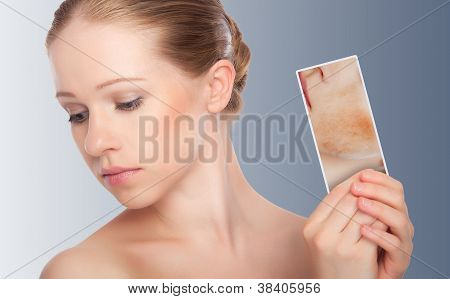 Concept Skincare . Skin Of Beauty Young Woman With Redness, Skin Problems, Acne, Rashes, Burns