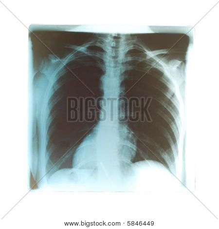 lungs Radiogram