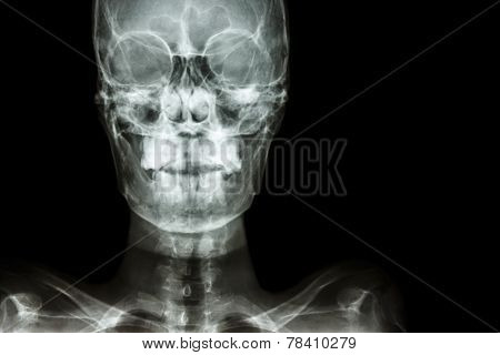 Normal Human's Skull And Blank Area At Right Side