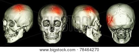 Ct Scan Of Human Skull And 3D With Stroke (cerebrovascular Accident)
