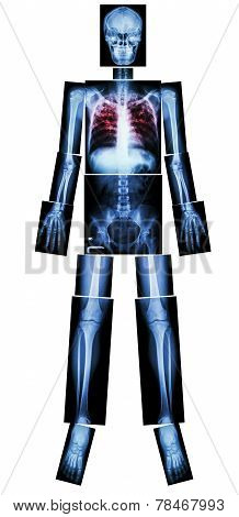 Pulmonary Tuberculosis ( TB )( x-ray Whole Body )