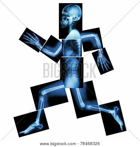 Aerobic Exercise (human bone is running)