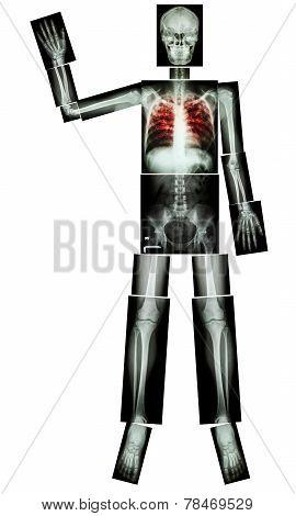 Stop Tb(tuberculosis) (human Bone Raise Hand)