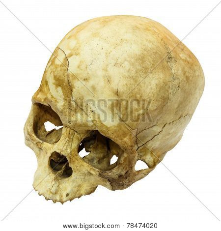 Human Skull Fracture(top Side,apex)(mongoloid,asian)