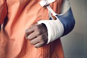 Closeup midsection of a man with broken arm in cast poster