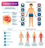 Cerebral Palsy Vector Illustration. Labeled Permanent Movement Disorder Type Scheme. Medical Educati poster