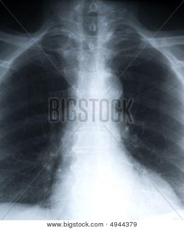 Retrato de pulmões de xray