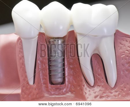 Capped Dental Implant Model