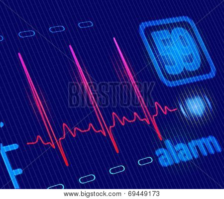 Lcd Medical Heart Monitor With Ecg Wave. Close-up Detailed  Illustration
