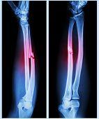 foto of fracture  - X - JPG