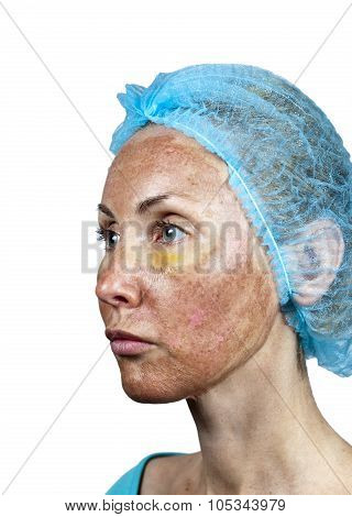 Cosmetology.Skin in the course of rejection after a deep chemical peeling. Boundary between the proc