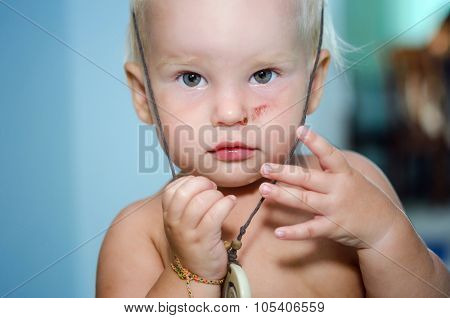 Portrait of litlle girl with scar on her face