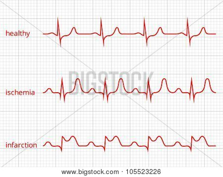 Heart cardiogram vector charts set. Healthy heart rhythm, ischemia, infarction