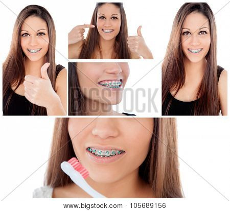 Care your teeth. Photo sequence of girl with brackets