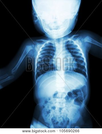 Film X-ray Child 's Body ( Normal Baby )