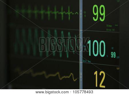 Ecg Monitor's Data