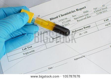 Normal triglyceride result