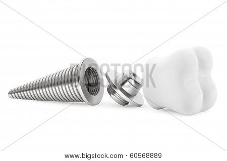 Dental Concept. Tooth Implant