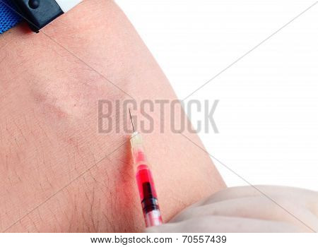 Intravenous Injection