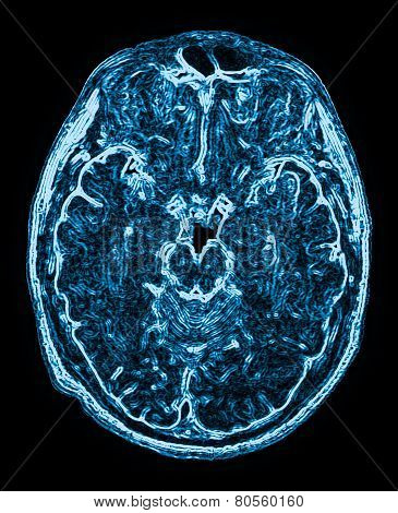 Mri Head Magnetic Resonance Image