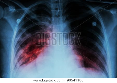 Pulmonary Tuberculosis ( Tb )